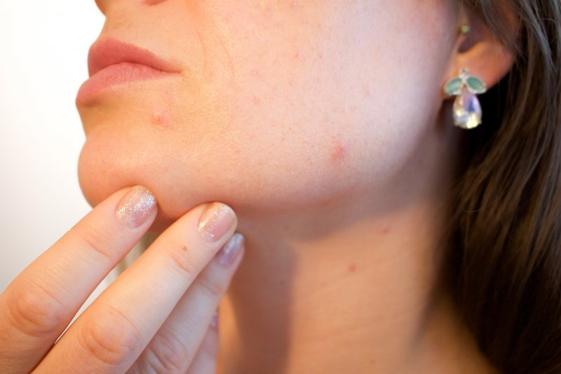 TRAITEMENT D'ACNE PAR LASER